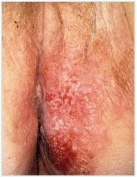 HPV - VIN