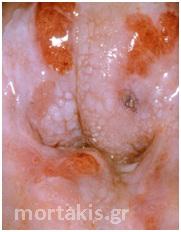 HPV - Ca